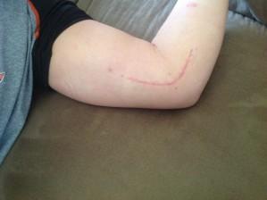 Tommy John scar